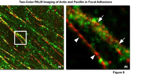 Photoactivated Localization Microscopy in Details
