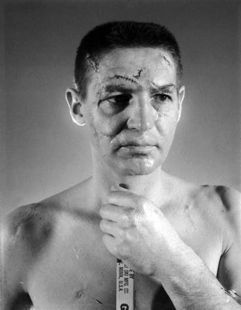 Terry Sawchuk - The face of a hockey goalie before masks